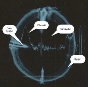1-Röntgenmynd af trjábol